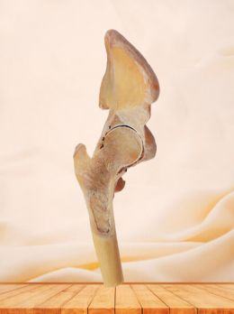 Coronal section of hip joint plastinated specimen