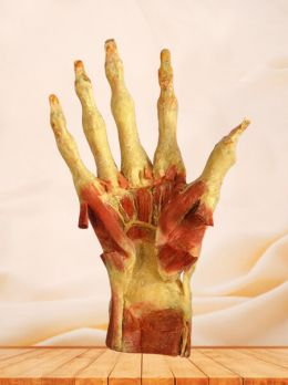Deep muscles of hand plastinated specimen