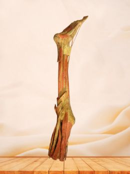 Deep muscles of lower limb plastinated specimen
