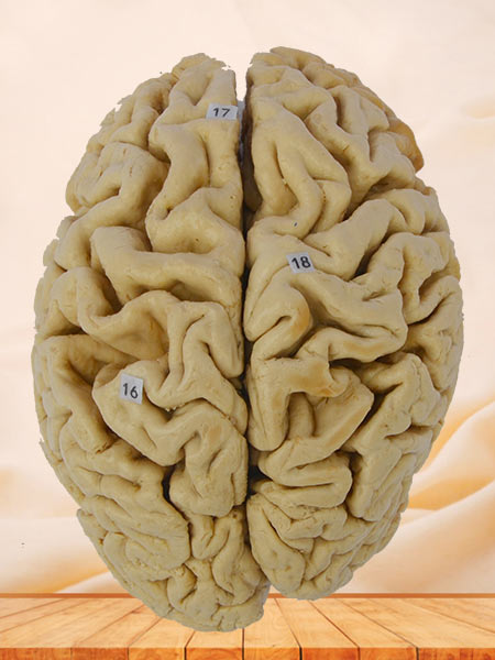 Human whole brain plastinated specimen