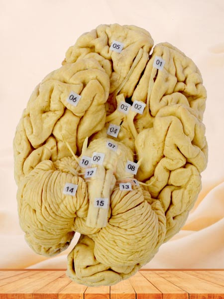 Human whole brain plastination specimen