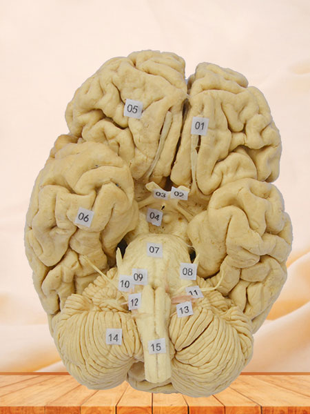 Whole Brain plastinated specimen