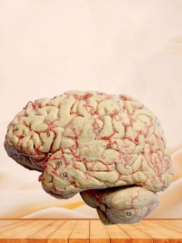 Cerebral hemisphere and brain stem plastinated specimen