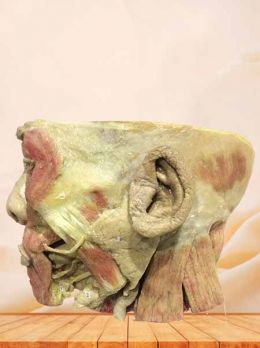 Salivary gland plastinated specimen