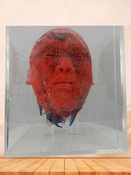 Blood vessels of head and neck casting specimen